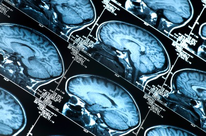 Get to Know Your Brain - A close up of a watch - Medical imaging